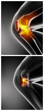 ACL Reconstruction (Knee Surgery)